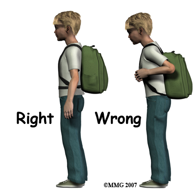 Back to School Backpack Backpain